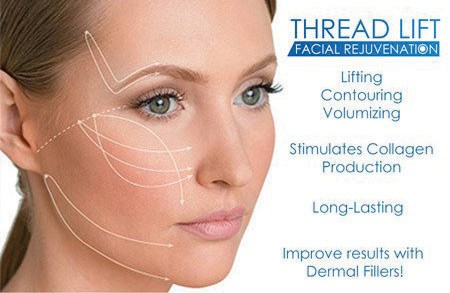 Nonsurgical facelift and skin tightening/lifting procedure with PDO